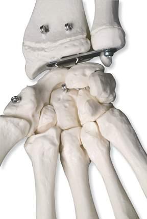 Adult Human Skeleton 44