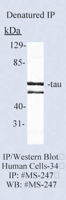 Epredia™Lab Vision™ Tau Ab-2 Mouse Monoclonal Antibody, 200µg/mL, biotinylated, BSA and azide 100μL; 1mg/mL; Unlabeled; Purified without BSA and azide Epredia™Lab Vision™ Tau Ab-2 Mouse Monoclonal Antibody, 200µg/mL, biotinylated, BSA and azide